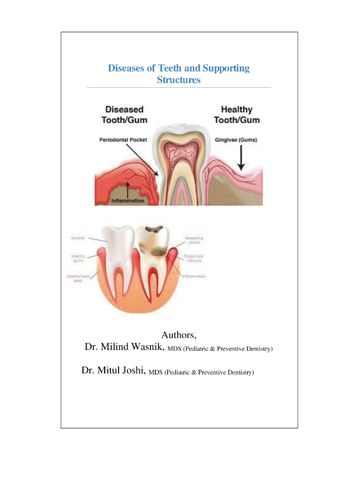 Diseases of Teeth and Supporting Structures